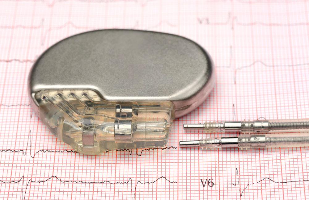 Control y revisión de marcapasos - desfibriladores cardíacos - Cardiavant
