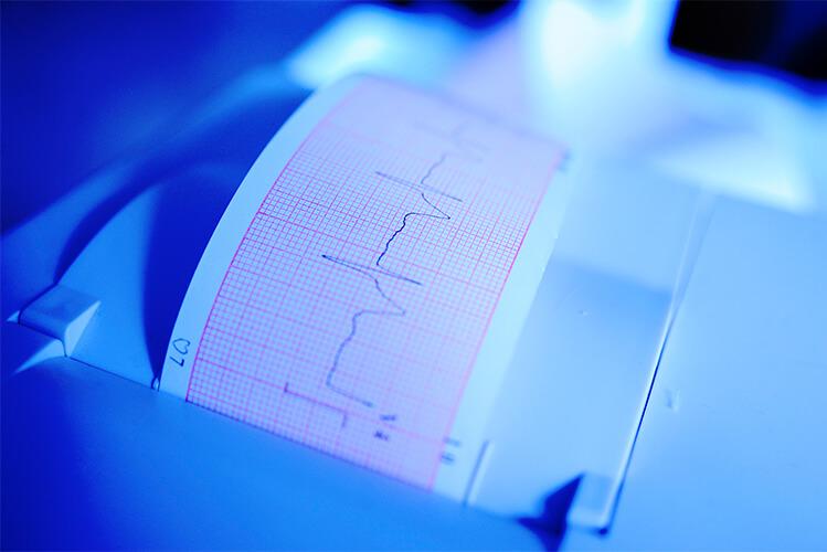 electrocardiograma anormal