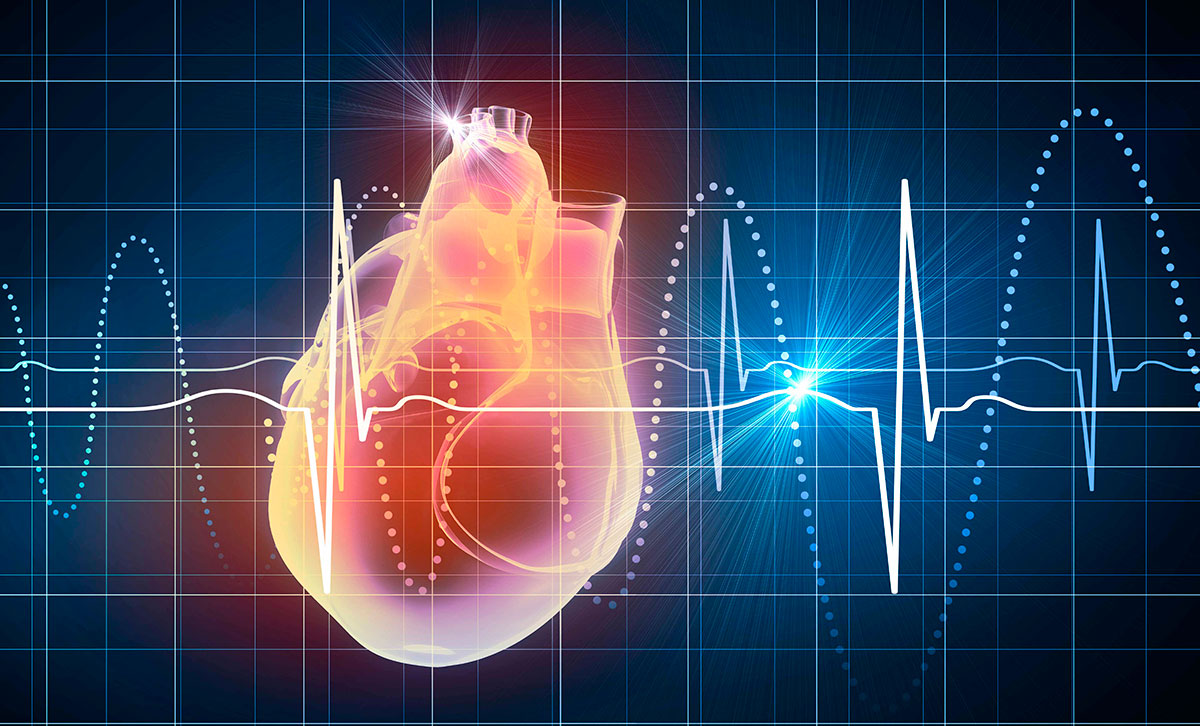 Electrocardiograma (ECG) - Cardiavant