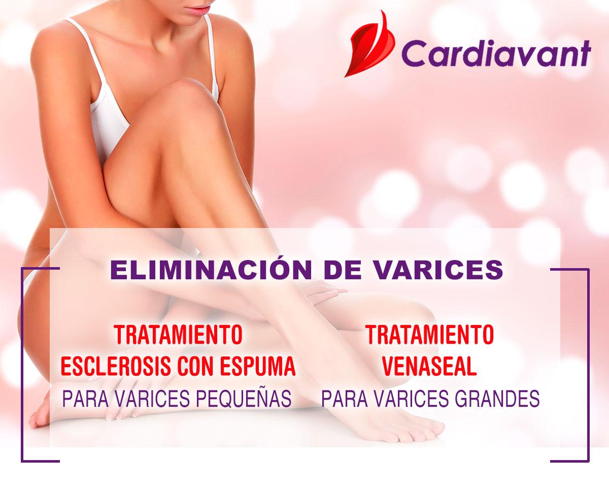 Promoción Eliminación de varices - Cardiavant