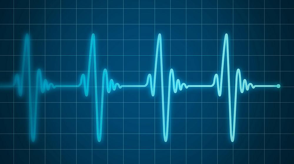 Pruebas cardiológicas - Cardiavent